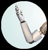پروتز دست مصنوعی
